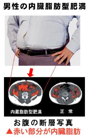 男性の内蔵型肥満.jpg