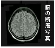 脳の断層写真.jpg