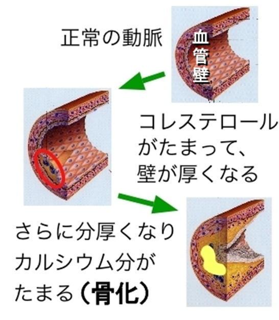 コレステロールと骨化.jpg