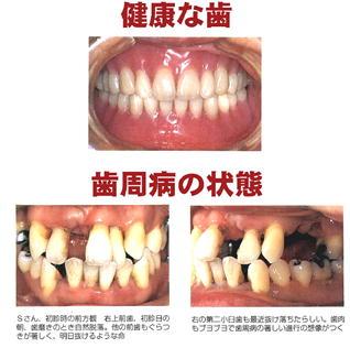健康な歯、歯周病の歯の写真.jpg