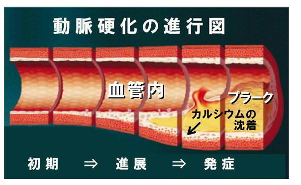 動脈硬化の進行図.jpg