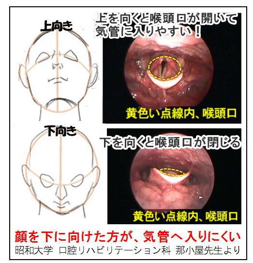 喉頭口.jpg