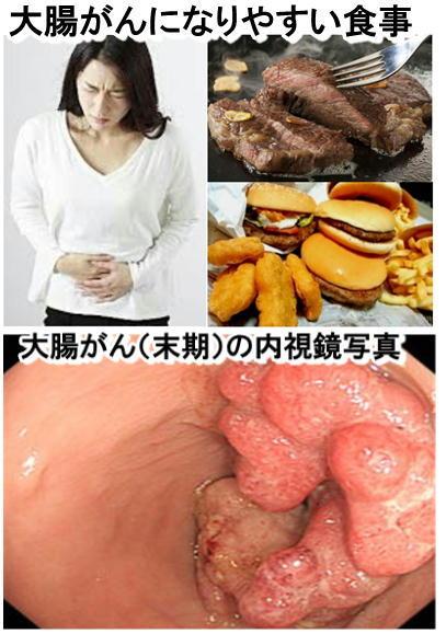 大腸がんになりやすい食事.jpg