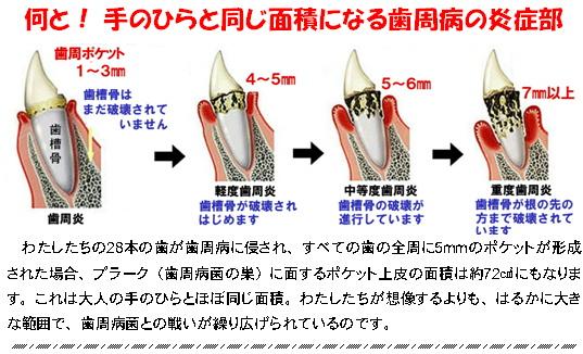 歯周病の炎症部.jpg