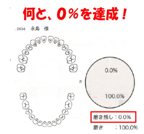 永島のみがき残し率.jpg
