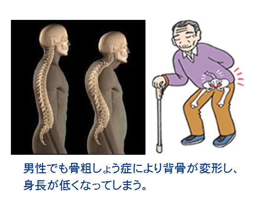 男性骨粗しょう症 イラスト.jpg