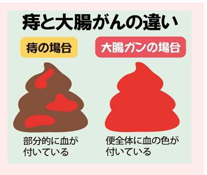 痔と大腸がんの違い.jpg