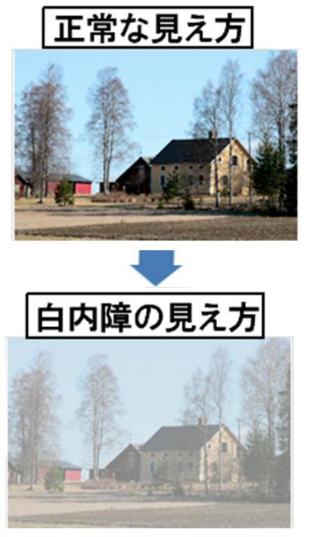 白内障の見え方.jpg