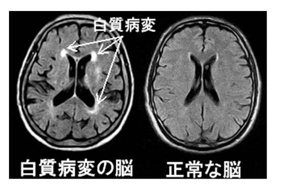 白質病変の脳.jpg