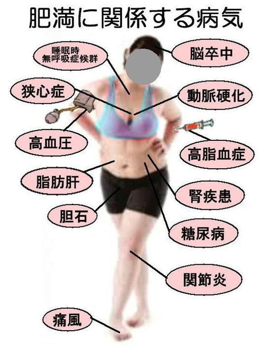 肥満に関係する病気.jpg