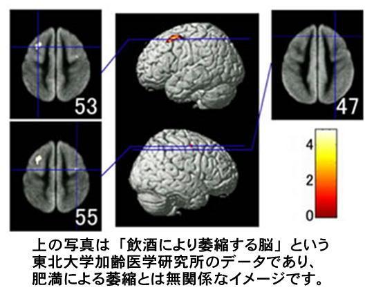 脳の萎縮写真.jpg