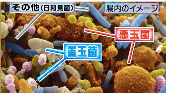 腸内の細菌.jpg