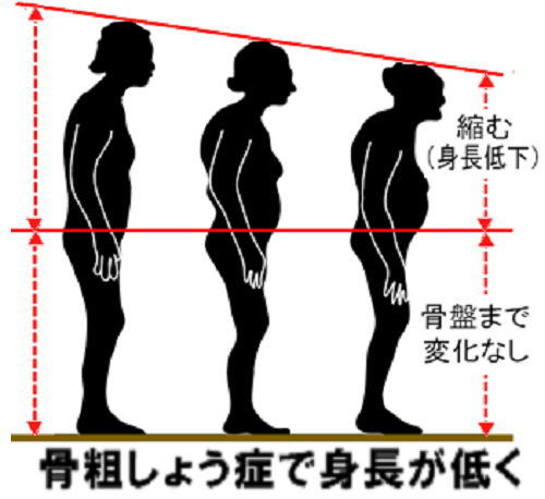 骨粗しょう症で身長が低く.jpg