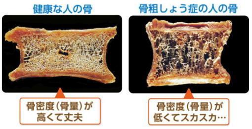 骨粗しょう症の骨.jpg