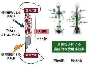 ストロンチウムと骨.jpg