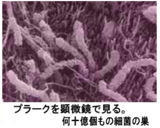 プラーク顕微鏡写真.jpg