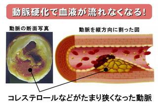 動脈硬化の血管.jpg