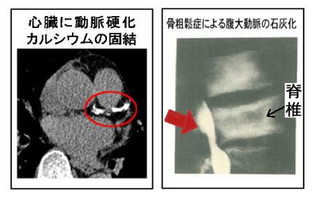 心臓にカルシウム.jpg