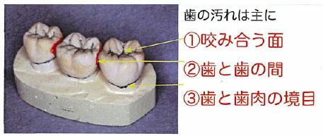 歯の汚れは主に 西村クリニック.jpg