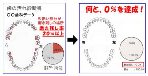 歯の汚れ診断.jpg