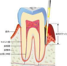 歯周ポケット1.jpg