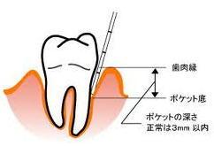 歯周ポケット2.jpg