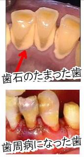 歯石のたまった様子.jpg