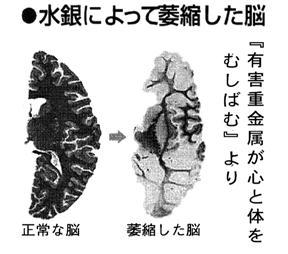 水銀により萎縮した脳.jpg