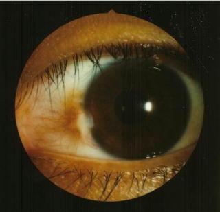 目の病気.jpg