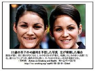 米双子の老化差喫煙で.jpg
