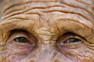 顔のしわと骨密度.jpg