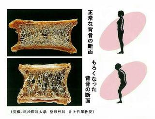 骨の断面図.jpg