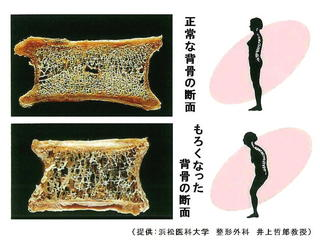 骨断面図の比較.jpg