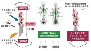 骨転移部に集まるストロンチウム.jpg