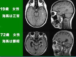 高齢者の脳萎縮.jpg